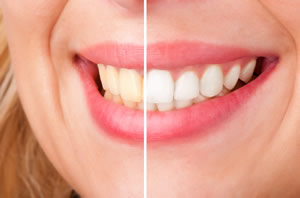 Teeth Whitening in Hamilton